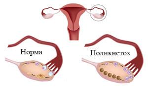 """Боль в яичниках при апоплексии, поликистозе, кисте и других заболеваниях - Семейный медицинский центр """"Лейб Медик"""""""