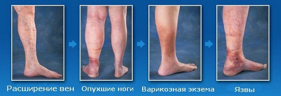 Начинают вены на ногах лечение